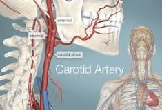 General knowledge about Carotid Artery
